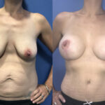 breast augmentation and lift and radical abdominoplasty perth front