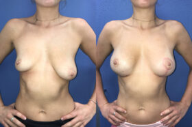 breast augmentation and lift perth front
