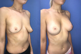 breast augmentation and lift perth oblique 2