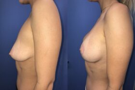 breast augmentation and lift perth side