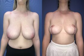 bilateral breast reduction surgery perth front