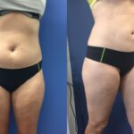 Patient 1 Liposuction Perth (side b)