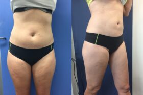 Patient 1 Liposuction Perth (side b)