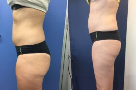 Patient 1 Liposuction Perth (side a)