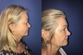 Blepharoplasty Perth side a