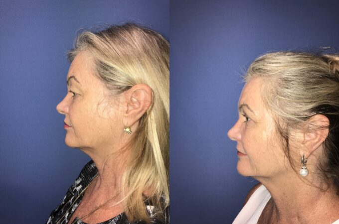Blepharoplasty Perth side b