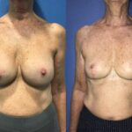 Explantation of bilateral breast implants perth