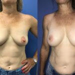 Bilateral submuscular breast augmentation perth