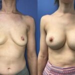 Bilateral asymmetric breast augmentation perth