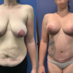 Radical abdominoplasty with fascial tightening and augmentation mastopexy perth
