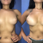Bilateral Submuscular Breast Augmentation front