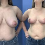 bilateral breast reduction front