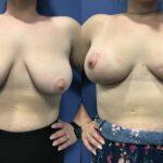 Bilateral augmentation mastopexy front