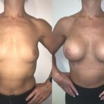 bilateral breast augmentation perth front