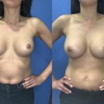 revisional breast augmentation perth front