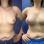 natural breast augmentation perth front