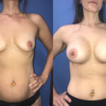 breast augmentation perth front