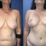 breast lift and abdominoplasty perth front