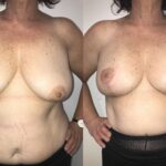 Patient 1 Breast Lift Perth front