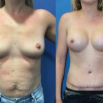 radical abdominoplasty and bilateral submuscular breast augmentation perth front