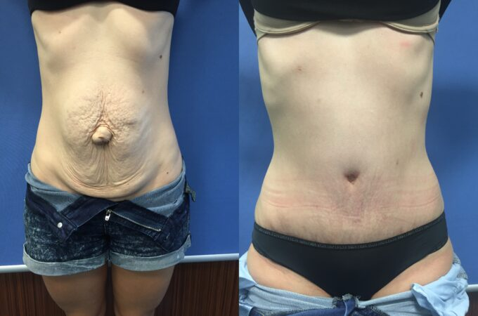 radical abdominoplasty and umbilical hernia repair perth front