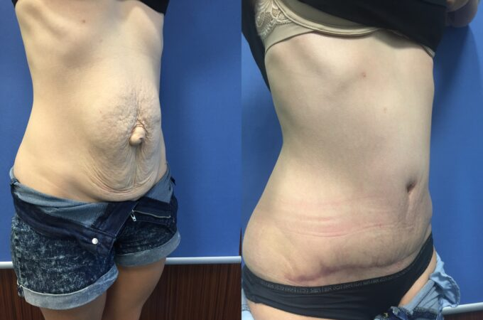 radical abdominoplasty and umbilical hernia repair perth oblique