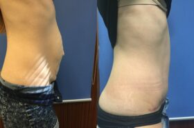 radical abdominoplasty and umbilical hernia repair perth side
