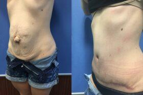 radical abdominoplasty and umbilical hernia repair perth oblique 2