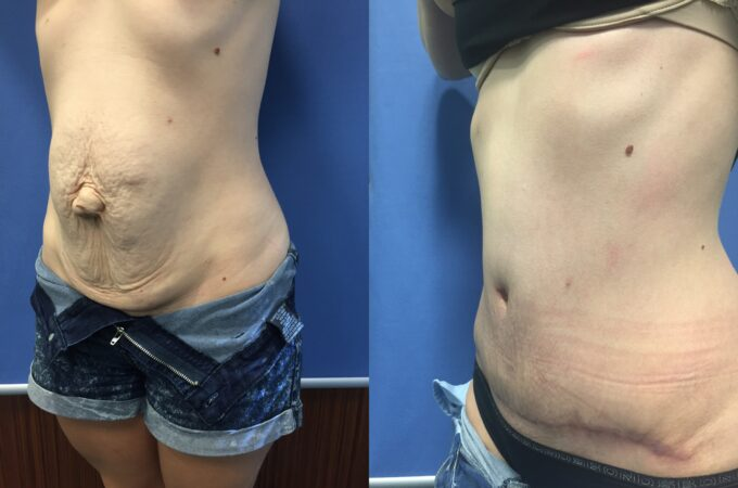 radical abdominoplasty and umbilical hernia repair perth oblique 2