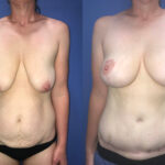 Patient 2 Breast Lift and Radical Abdominoplasty Perth front