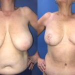 Patient 14 Breast Reduction with Radical Abdominoplasty Perth front