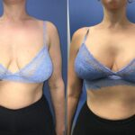 breast lift and implants perth front