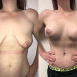 breast augmentation mummy makeover perth front