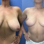 breast lift perth western australia front