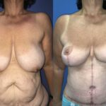 circumferential belt lipectomy and breast lift perth front