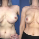 breast revision and breast augmentation perth front
