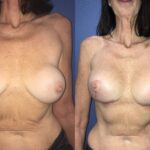 Patient 1 Breast Revision/Augmentation Perth Front