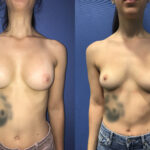 Patient 2 Breast Revision/Aug Front