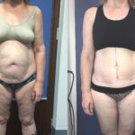 Patient 2 Body Contouring /Brachioplasty Perth front