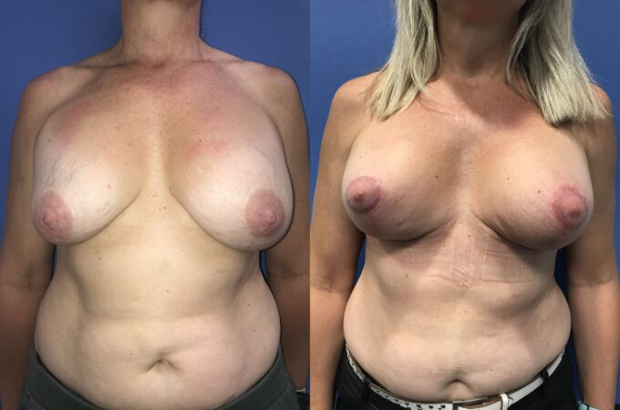 capsulectomy breast surgery perth front