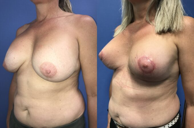 capsulectomy breast surgery perth oblique