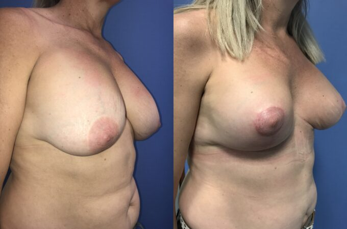 capsulectomy breast surgery perth oblique 2