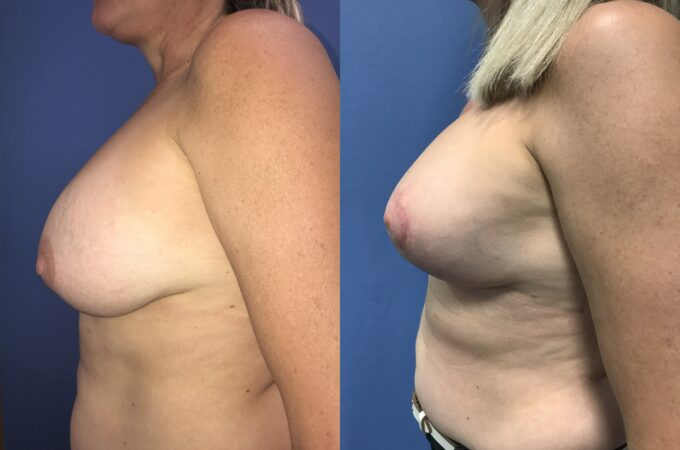 capsulectomy breast surgery perth side