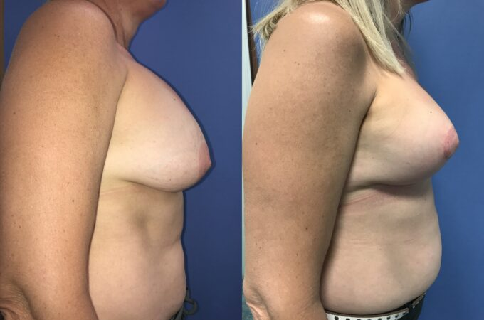 capsulectomy breast surgery perth side 2