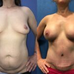 breast augmentation and lift with radical abdominoplasty perth front