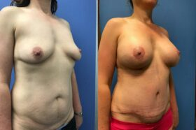 breast augmentation and lift with radical abdominoplasty perth oblique
