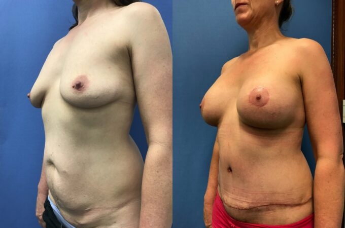 breast augmentation and lift with radical abdominoplasty perth oblique 2