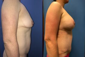 breast augmentation and lift with radical abdominoplasty perth side