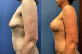 breast augmentation and lift with radical abdominoplasty perth side 2