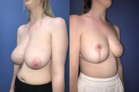 bilateral breast reduction surgery perth oblique